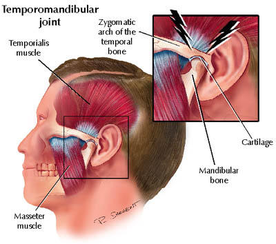 treatment of ear cracking