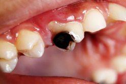 दाँत किराले कसरी खान्छ ?