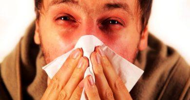 एलर्जी